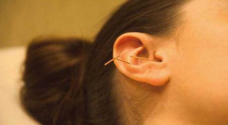 akupunktura auriko_medicinske pijavke