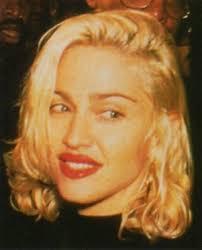 Madonna lip filler