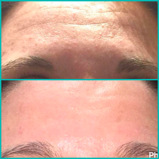 Traitement de l'acné Dermaligne