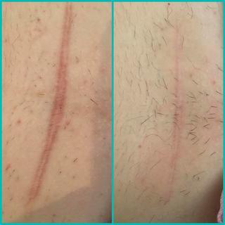 cicatrices chiriugicales