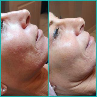 Dermaligne-acné-visag.png