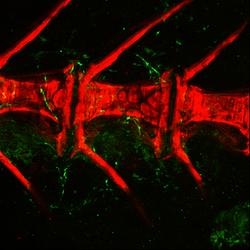 WT vertebral column alizarin red confocal