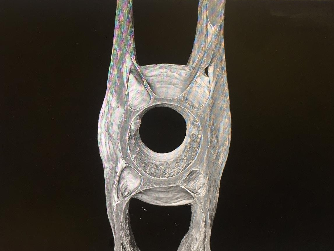 Vertebrae from synchotron microCT
