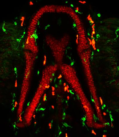 DMSO immune cell transgenic