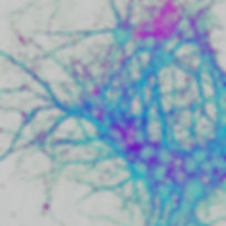 Neuronal cultures copy 2 inverted light dark.jpg