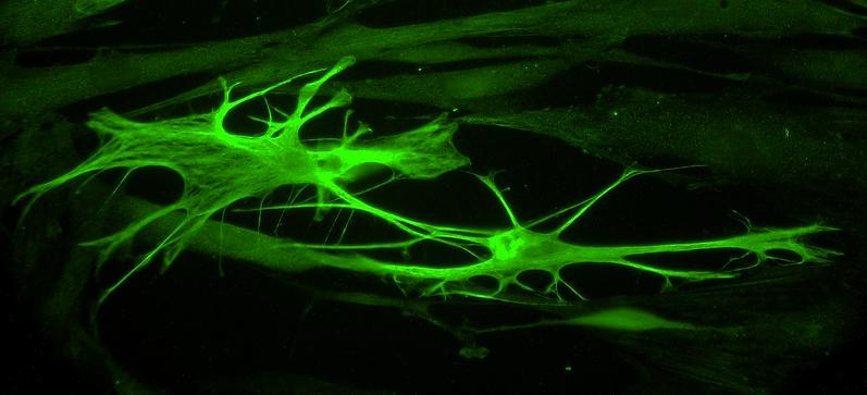 two astrocytes decreased brightness.tif