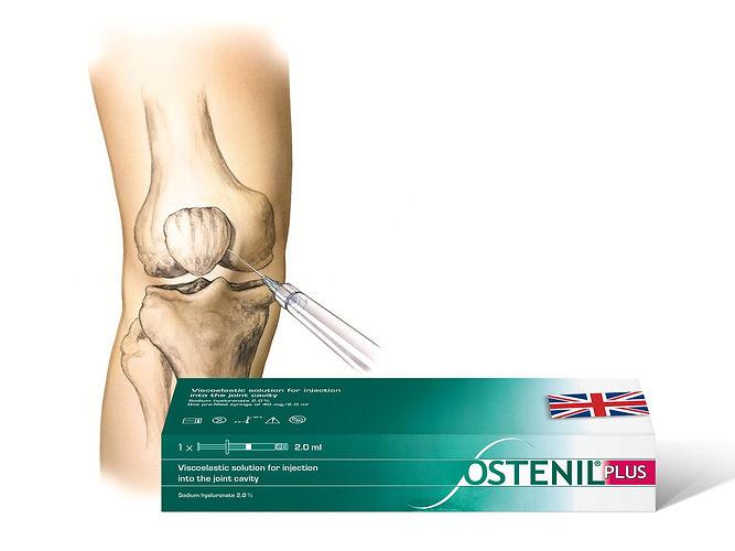 Ostenil Plus UK Knee Inj combo 2019[55].