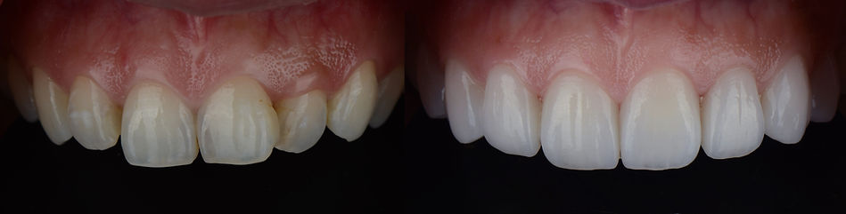 Smile makeover with dental ceramic venee