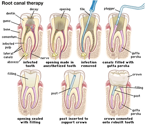 root-canal-anatomy-of-the-human-permanen