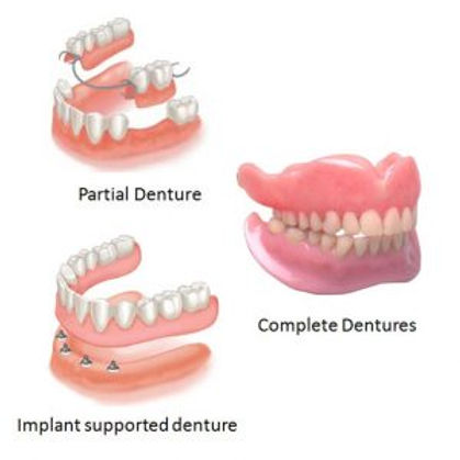 Dentures-sets-300x300.jpg