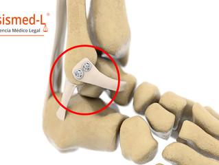 Científico mexicano desarrolló cinchos quirúrgicos para reparar tendones y ligamentos