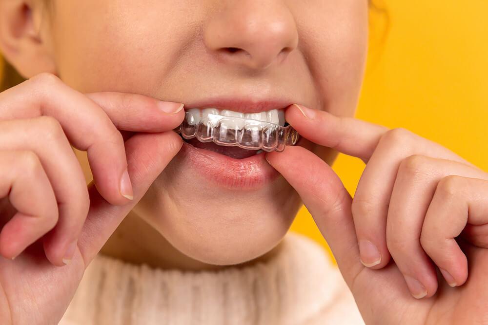 Paciente colocando seu alinhador ortodôntico nos dentes