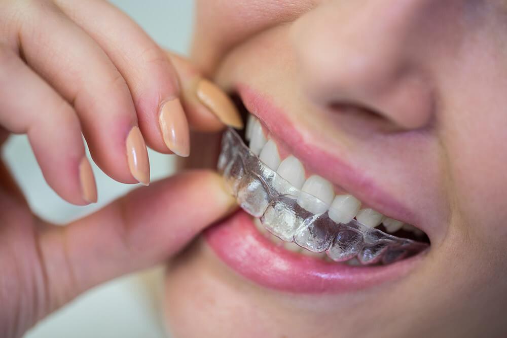 paciente colocando alinhador invisível nos dentes
