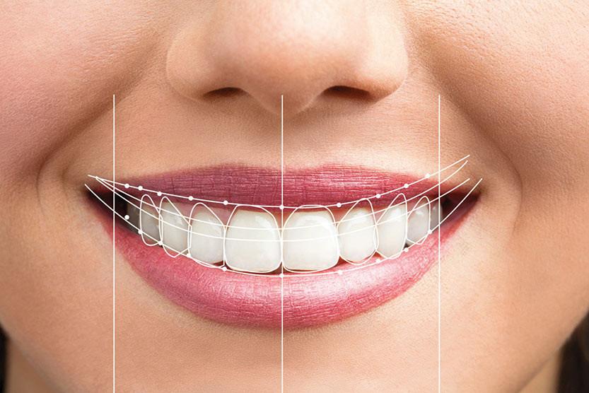 sorriso planejado com software odontológico de digital design smile