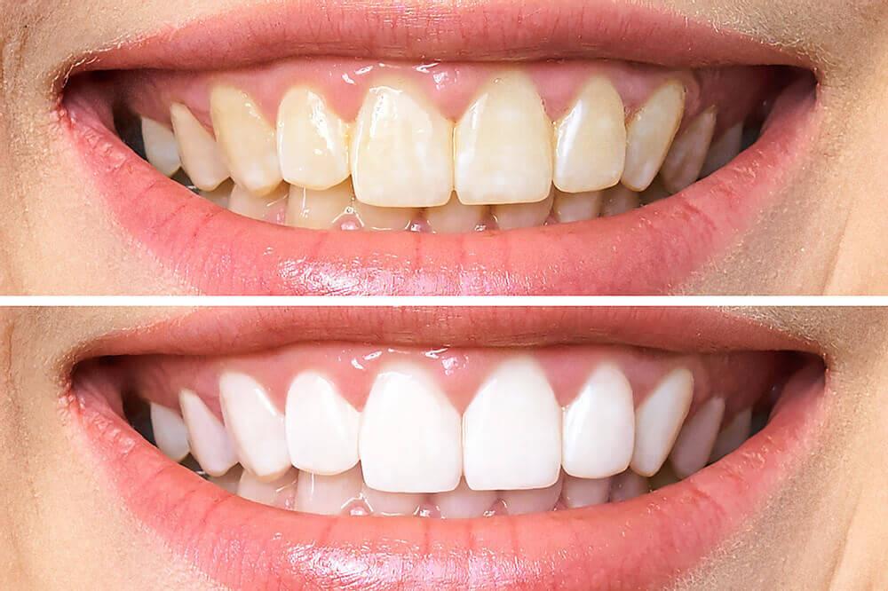 imagens do antes e depois de um clareamento dos dentes
