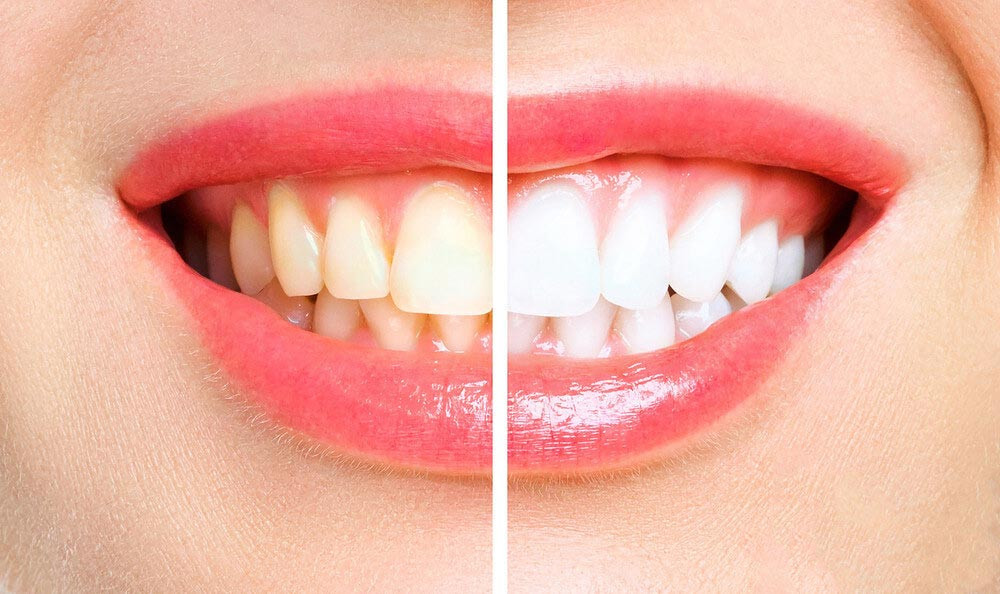 captação de pacientes na odontologia, resultado de antes e depois no clareamento