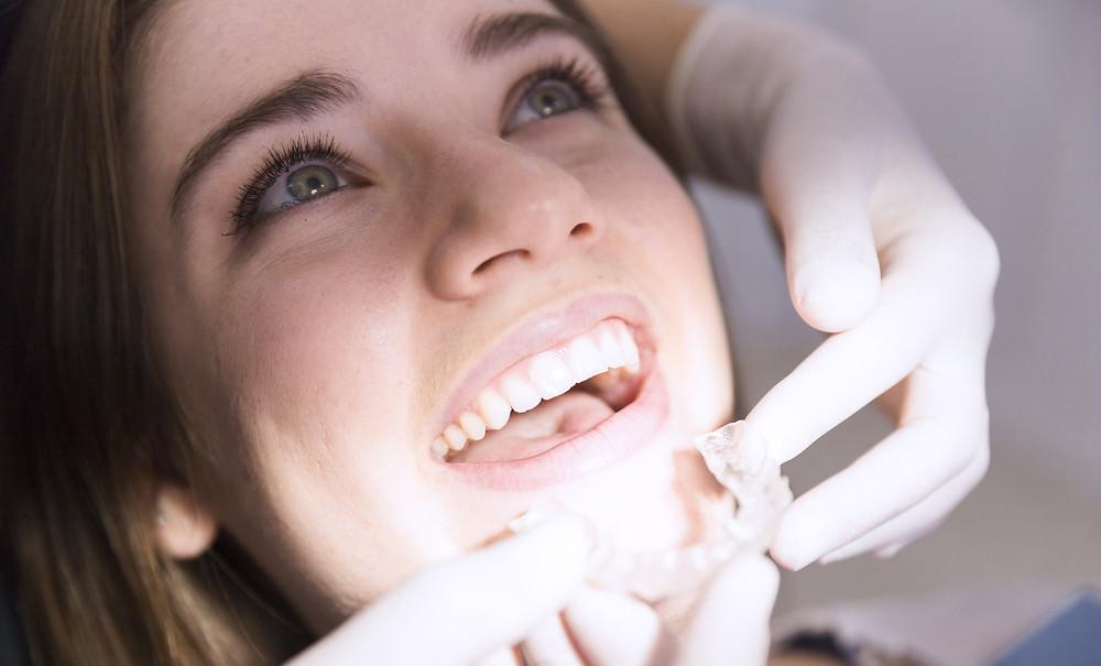 alinhadores invisíveis, paciente sorrindo e dentista colocando o alinhador invisível nos dentes dela
