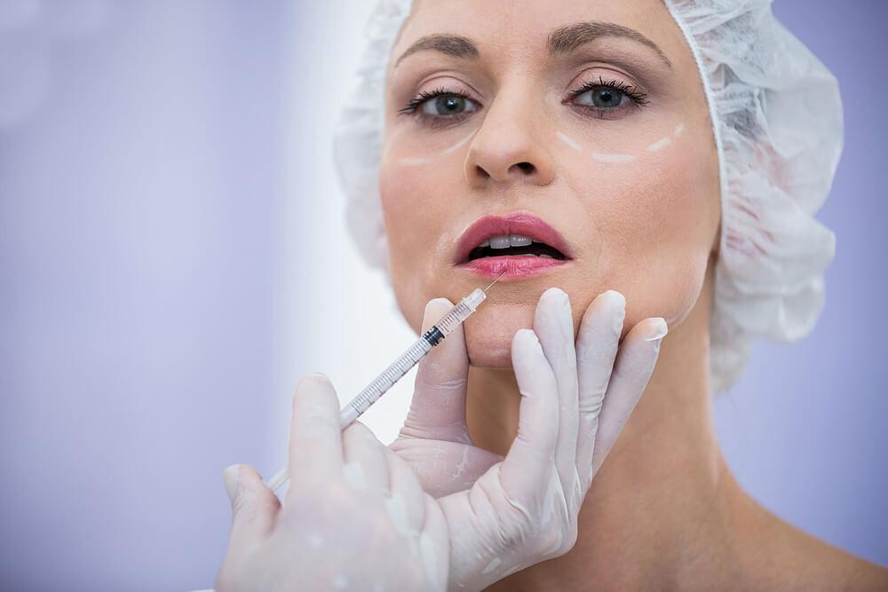 paciente realizando preenchimento labial
