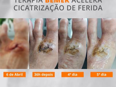 Terapia BEMER acelera a cicatrização de ferida no pé