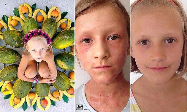 Mãe cura doença de pele crônica da filha somente através da Alimentação Detox