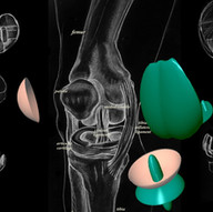 Knee With replacement parts
