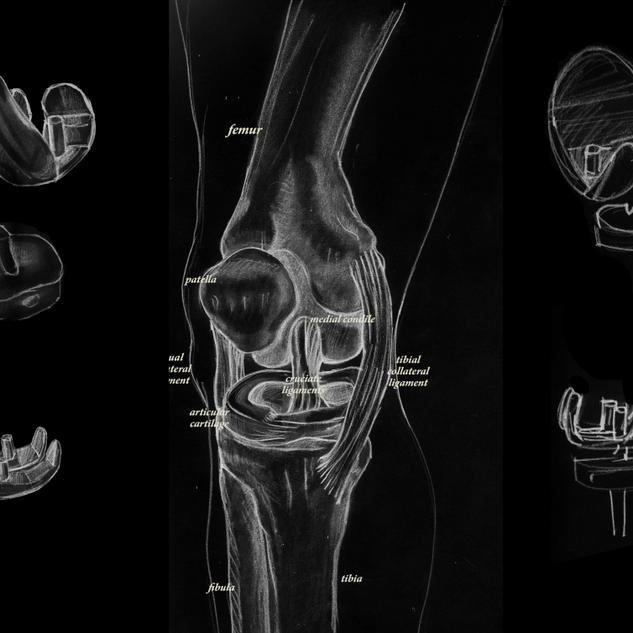 Diagram of a knee