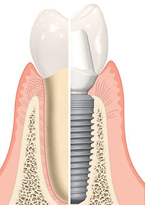 NobelReplace%20CC%20-%20single%20tooth%20solution_edited.jpg