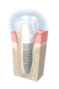 implante barra da tijuca