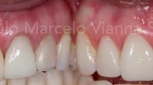 Lentes de contato dentais: o que são?