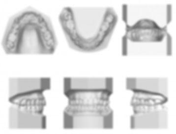periodontia dentista barra da tijuca