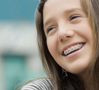 Extrações para Ortodontia: ainda se faz isso?