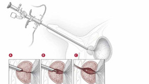 Ressecção endoscópica da próstata