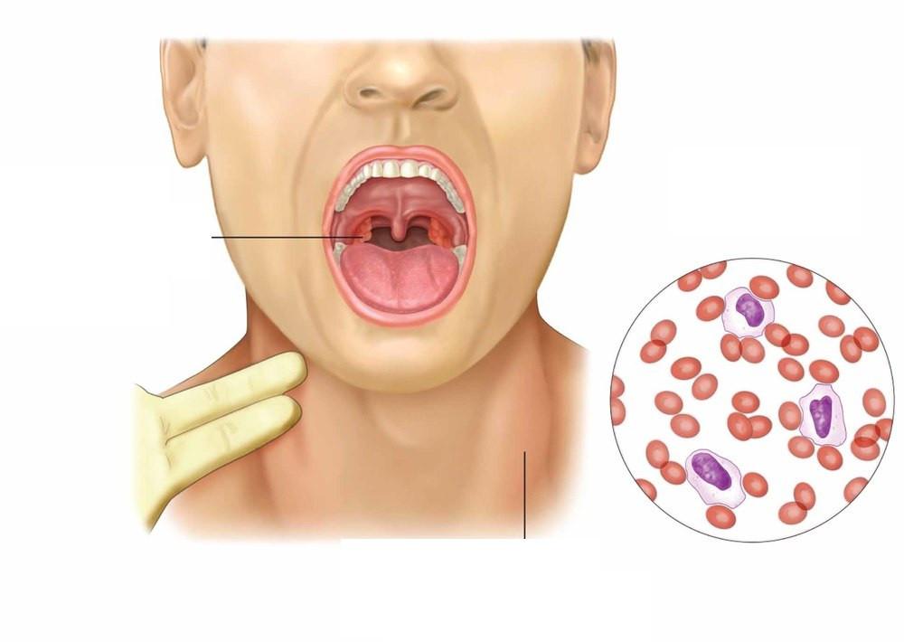 Мононуклеоз простатита как определить мужчине простатит