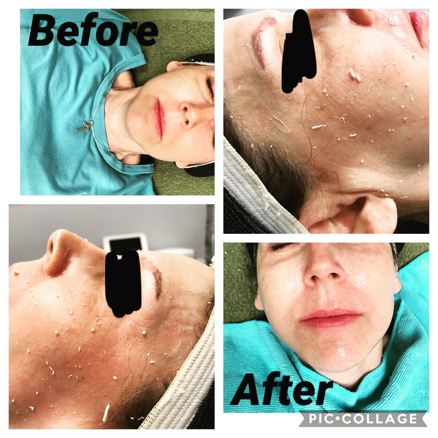 Opti-Resurfacing Treatment