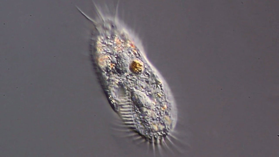 Stylonchia sp.
