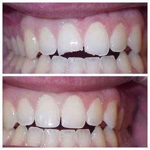 2019 Chipped Teeth.JPG