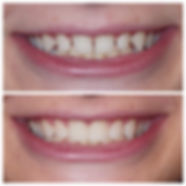 2019 Veneers Collage.jpg