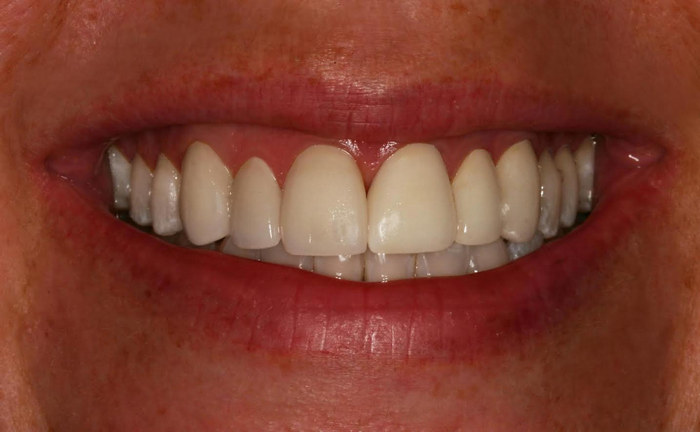 Invisalign Patient After Photo re Invisalign