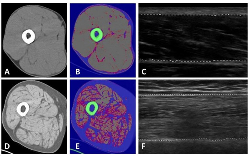 Axial CT scans and sonography of the mid-thigh