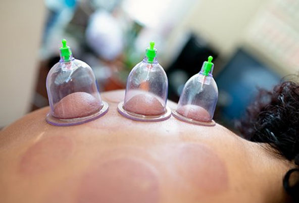cupping-traditional-chinese-medicine.jpg