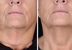 rf_treatment neck.jpg