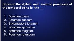 Dental-Hygiene-Flashcards-bones (19)