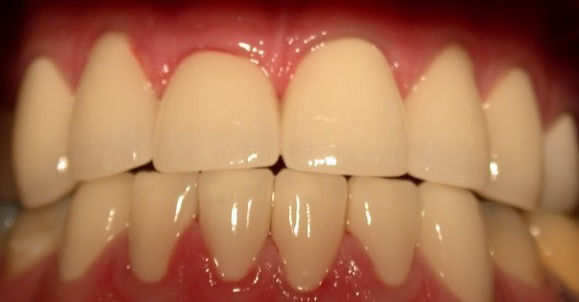 wdge-to-edge-bite-orthodontics_edited.jp