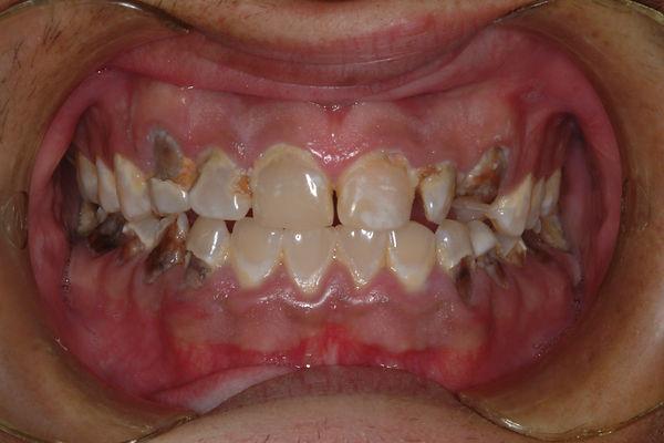 poor-dental-hygiene-dental-hygiene-rocks