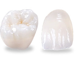 porcelain-crowns-showing-tooth-fracture.