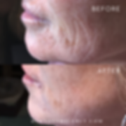 before and after wrinkle treatments