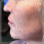 close up of woman's face after wrinkle treatments