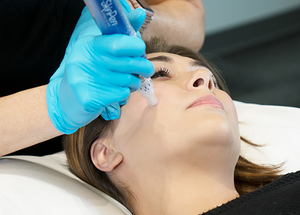 woman getting a microneedling treatment with skin pen