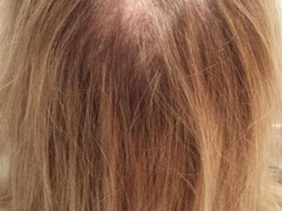 fine hair texture