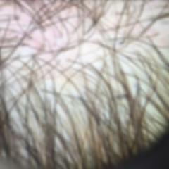Hair Loss_edited.png